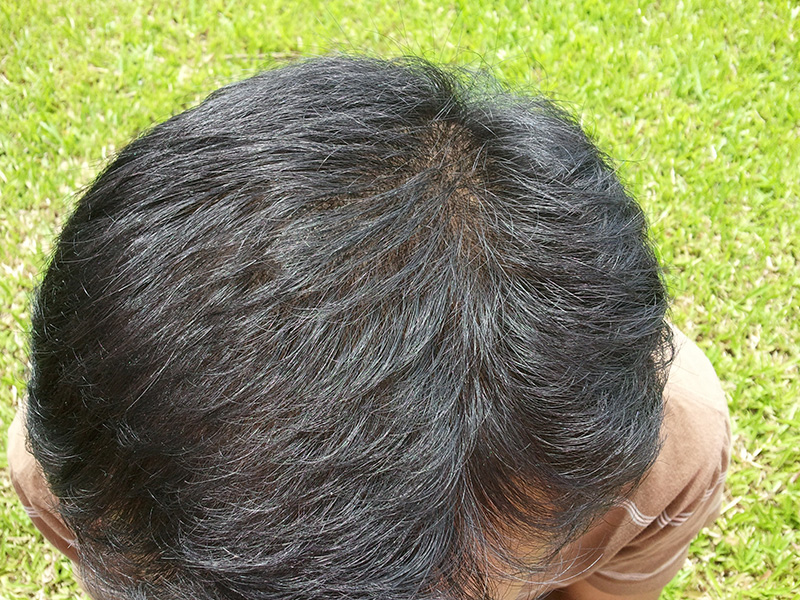 After-Hair Fiber